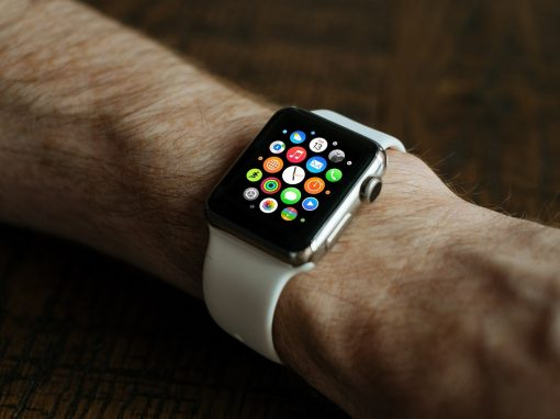 The AppleWatch – Do you need one?
